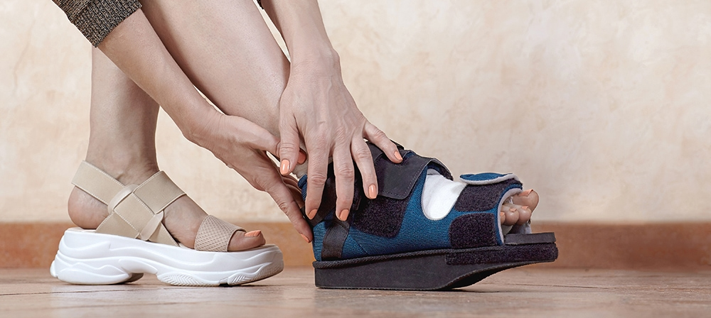 At-Home Post Bunion Surgery Recovery