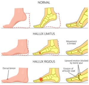 Progression of big toe arthritis