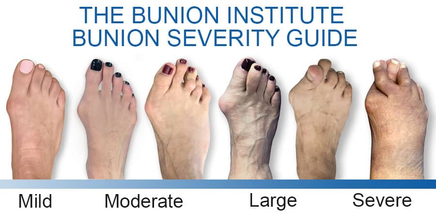 Bunion Severity Guide, How bad is my Bunion, The Bunion Institute of Los Angeles