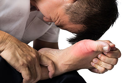 Bunion Pain, The Bunion Institute of Los Angeles