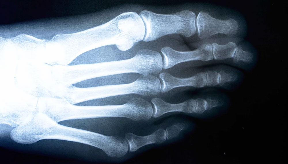 X-ray of a bunionette