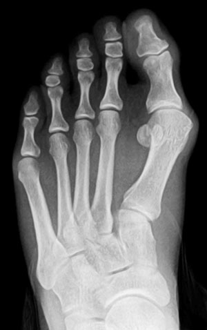Bunion before Picture x-ray, The Bunion Institute of Los Angeles