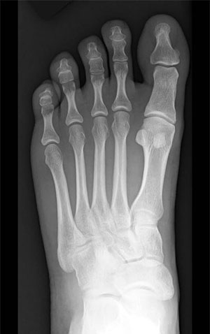 Normal Foot Anatomy Xray, The Bunion Institute