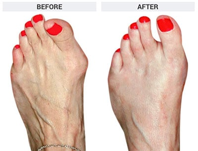 Osteotomy Bunionectomy, The Bunion Institute of Los Angeles
