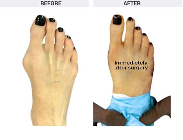 Osteotomy Bunionectomy and Tailors's Bunionectomy