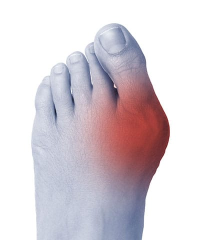 What's a Bunion, Bunion Institute of Los Angeles,