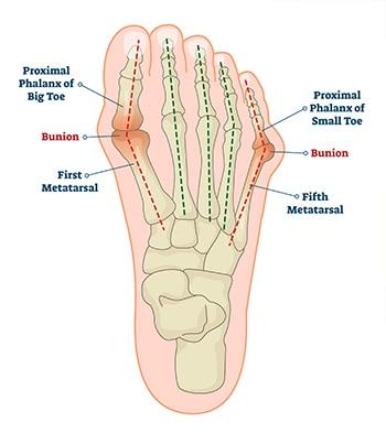 Anatomy of a bunion