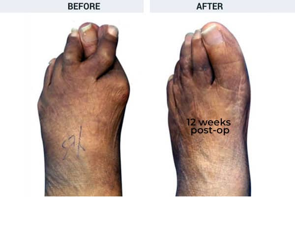Forever Lapidus Bunionectomy with Hammertoe and Tailor's Bunion Correction