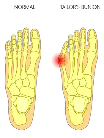 Anatomy of a tailor's bunion