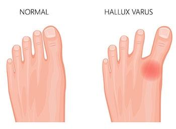 Hallux Varus vs healthy foot